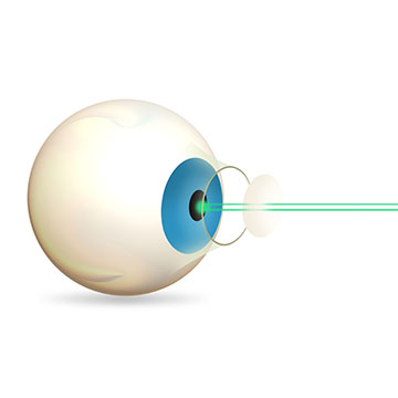 What is the cost of laser operation for diabetic retinopathy in India?
